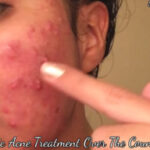 Cystic Acne Treatment Over The Counter - Simple Guidance