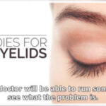 Top Trends In Dry Skin On Eyelid-Treatment And Causes To Watch