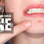 7 Ways To Know About How To Get Rid Of Pimples On Chin