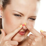 How To Get Rid Of Pimples On Nose - Best Useful Beauty Tips
