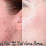 How To Get Rid Of Red Acne Scars On Face?