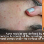 How To Get Rid Of Under The Skin Pimples - What You Can Do About It
