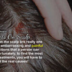 Symptoms Of Red Spots On Scalp – Conditions & Fectors You Can Learn